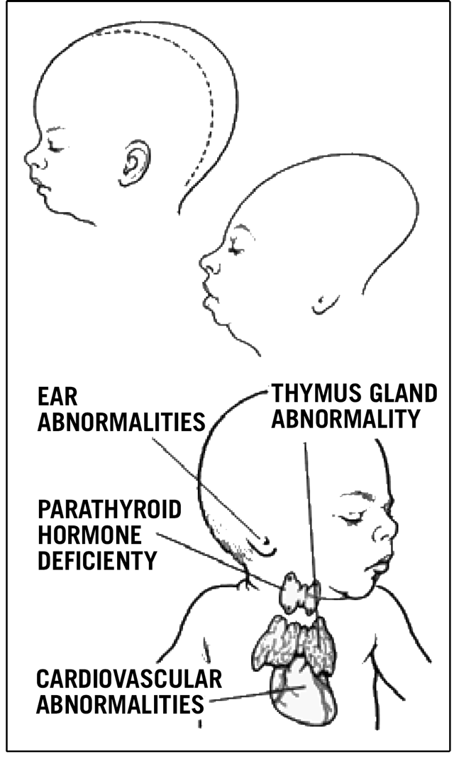 Illustration of very severe birth defects caused by Accutane: skull shape, small chin, enlarged skull, deformed or missing ears